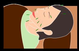 鍼治療イメージ